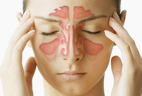 szinuszos fejfájás tünetei és okai