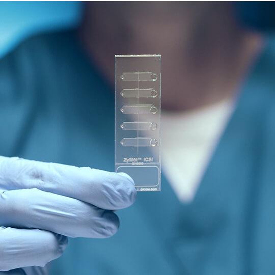 ZyMot ICSI hímivarsejt szelektáló